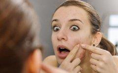 豆尚:牙膏祛痘靠谱吗 祛痘偏方也不能乱用